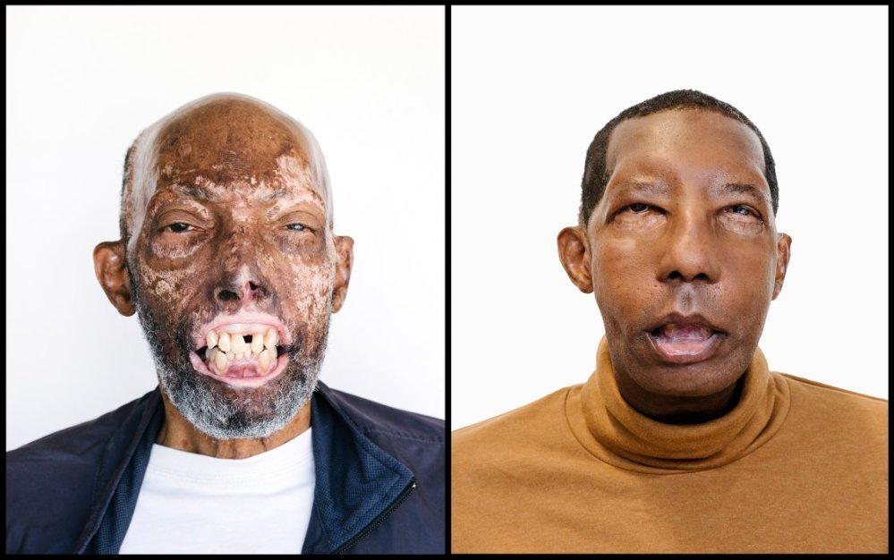 FaceTransplant.jpg